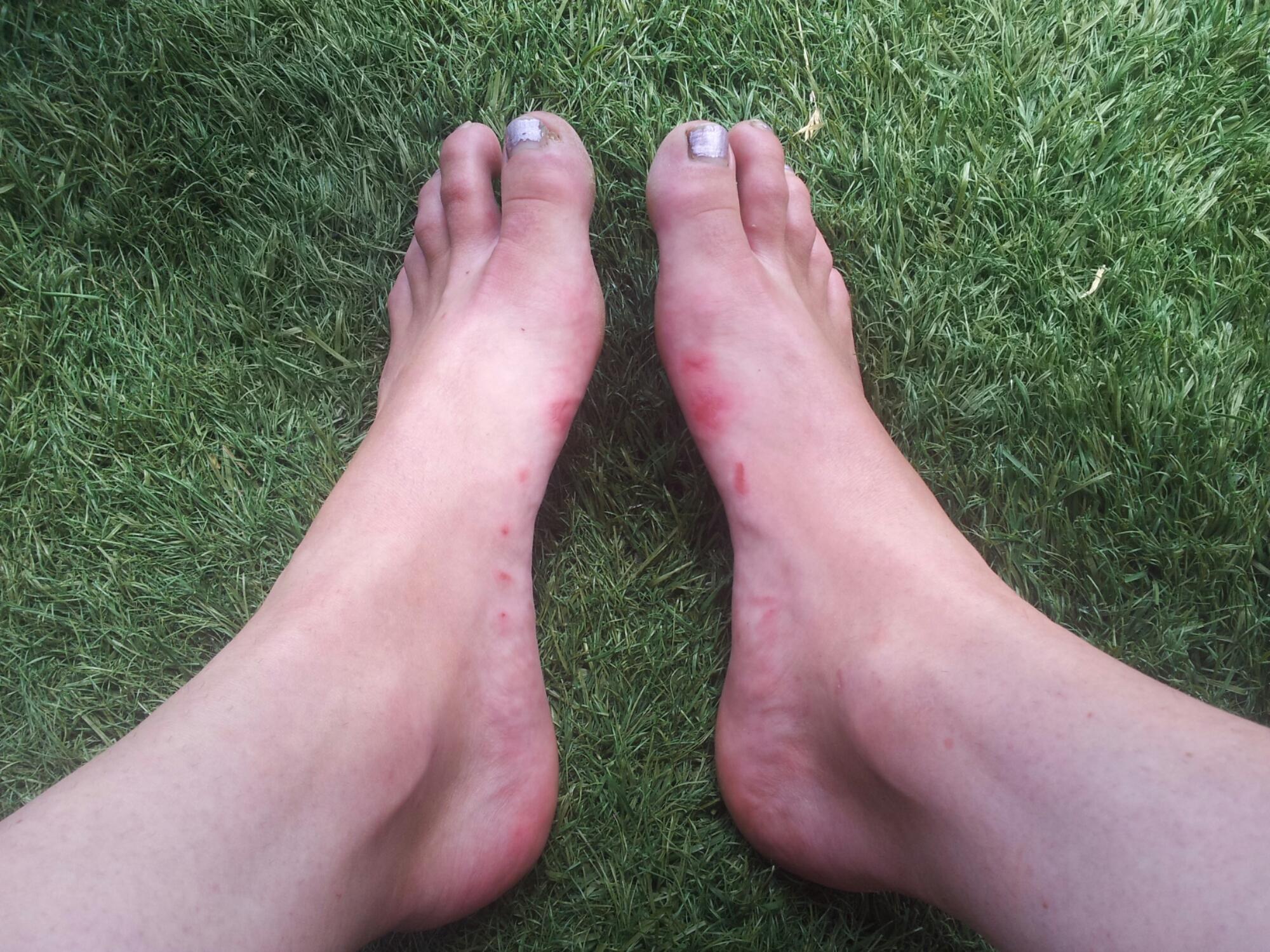 Met blote voeten in FiveFingers, beter van niet